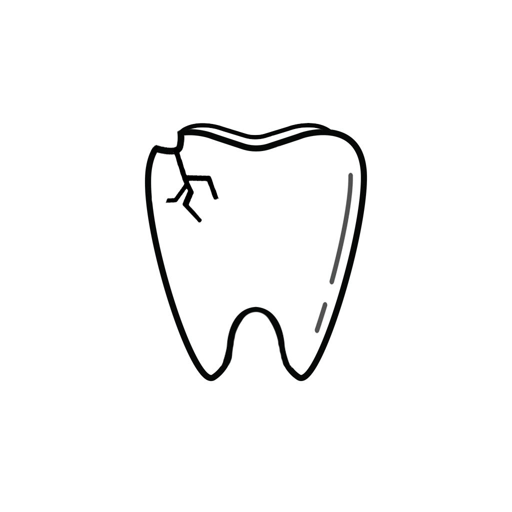 Fremont Dentist | I Chipped a Tooth! What Can I Do?